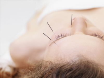 Facial Rejuvenation Acupuncture in San Francisco