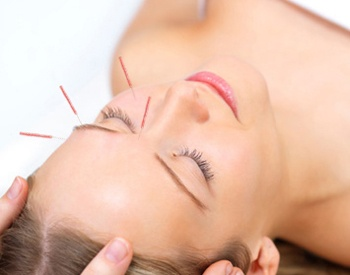 San Francisco Acupuncturist