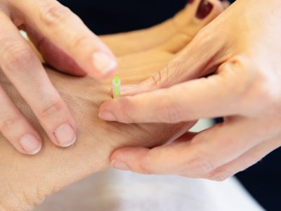 Acupuncture for Fertility in San Francisco
